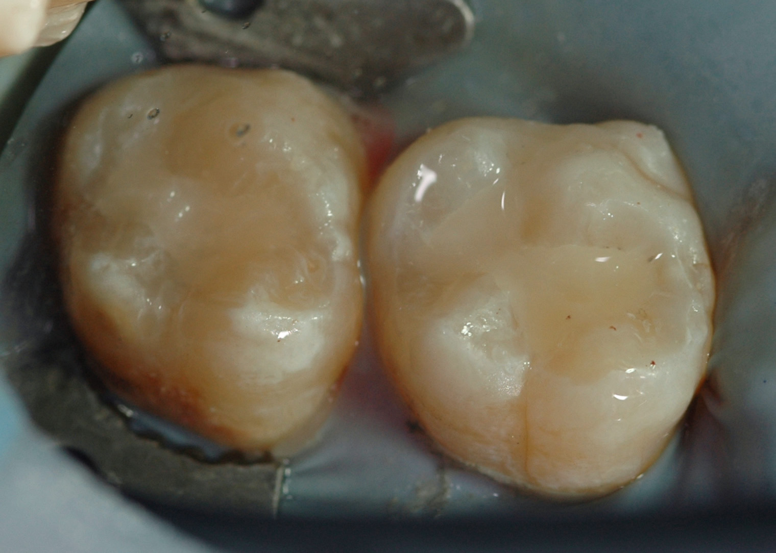 Example of replacing leaky fillings