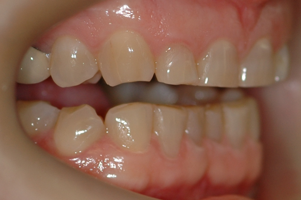 Night Grinding effect on teeth