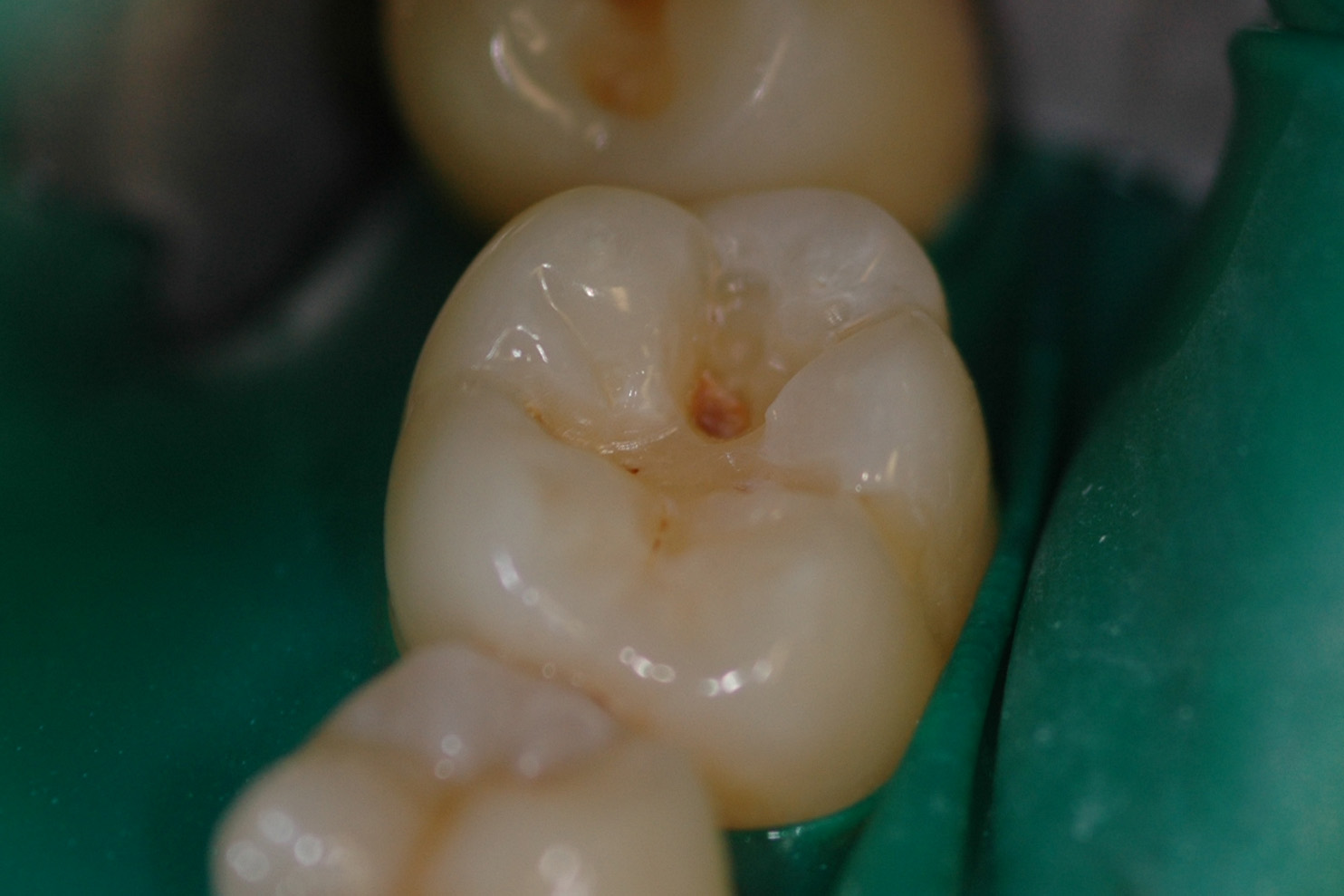 Sealants image 3