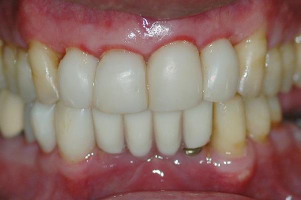 Gingivitis image 1