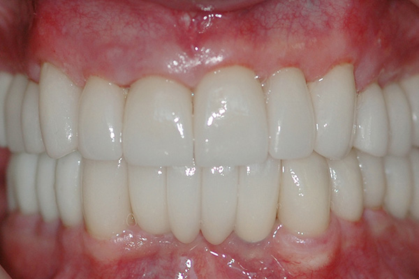 Gingivitis - Pictures, posters, news and videos on your ...