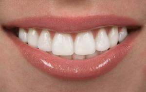 Aldente Dentistry veneers